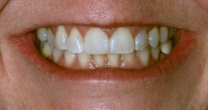 bBioclear diastema case after